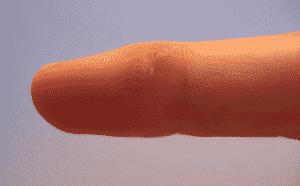 Verrue doigt douloureuse