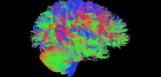 Comprendre le cerveau des enfants à haut potentiel