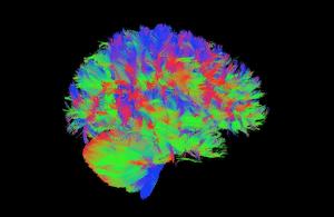 Le cerveau des enfants précoces décrypté