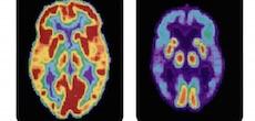 Différentes facteurs de risques accélèrent l'apparition d'Alzheimer