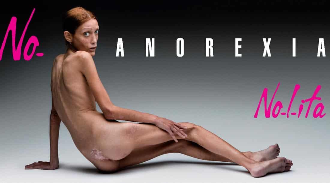Anorexie, la maladie des ados