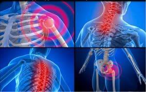 La fibromyalgie, un mal aux multiples douleurs corporelles