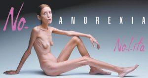 Isabelle Caro est décédée en 2010 à l'âge de 30 ans après un long combat contre l'anorexie. Cette photo avait été prise lors d'une campagne italienne contre l'anorexie. ©DR