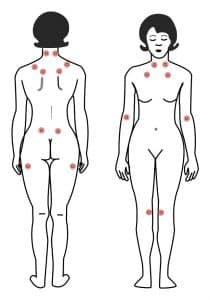 Points fibromyalgie