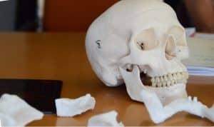 L'imprimante 3D, une vraie révolution pour la chirurgie maxillo-faciale.