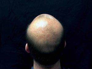 La chute de cheveux s'accélère avec l'âge