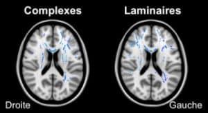 en bleu les augmentations de connectiveté structurale (points bleus) des Complexes et des Laminaires par rapport aux Contrôles. On voit sur cette coupe que l'hémisphère droit des Laminaires présente plus de régions augmentées que les Complexes.