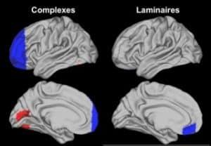 en bleu et en rouge, les images de connectivité fonctionnelle montrant, par rapport aux contrôles, une baisse de connectivité (bleu) dans le cortex prefrontal des Complexes et dans le cortex orbite-frontal des Laminaires et une augmentation de connectivité dans le cortex occipital-temporal des Complexes.