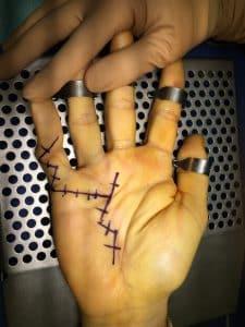 Maladie de Dupuytren cicatrice