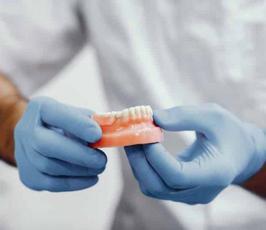 Tout savoir sur les implants dentaires.