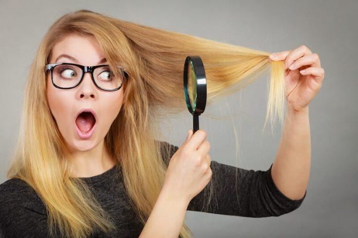 Les pellicules, l'ennemi beauté de vos cheveux.